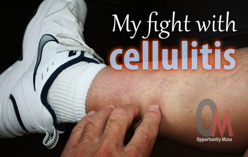 my fight with cellulitus